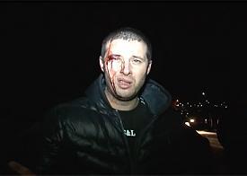 бунт в колонии, Копейск, пострадавший наблюдатель Фото: kp.ru