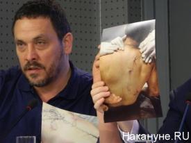фото убитого Ибрагима Тодашева, Шевченко|Фото:Накануне.RU