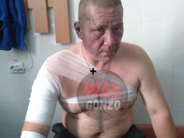 Игорь Хакимзянов, взрыв в Донецке(2018)|Фото: War Gonzo