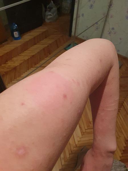 Аллергические реакции у москвички после прививки от коронавируса(2021)|Фото: источник Накануне.RU